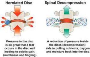 Spinal Decompression Scottsdale